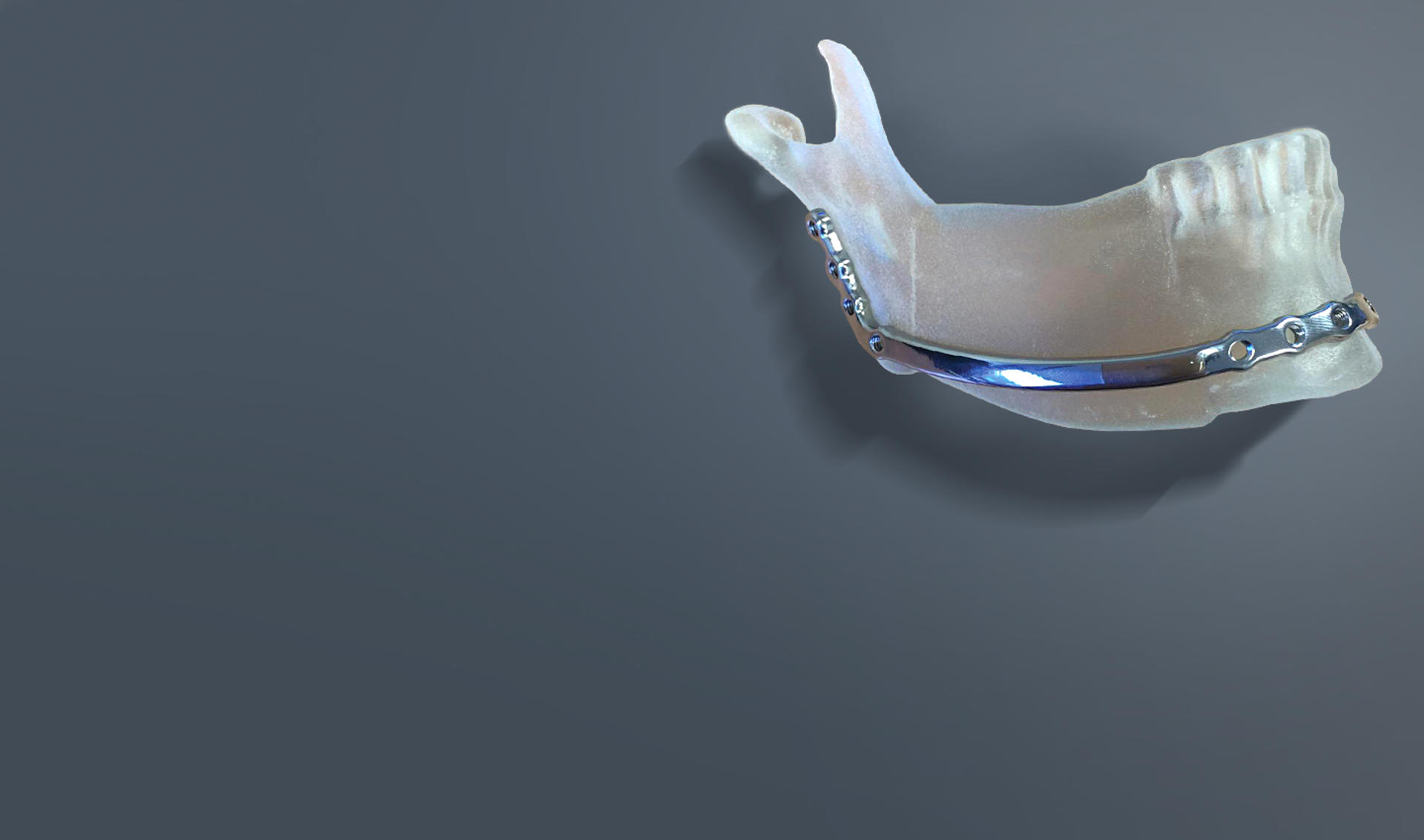 banner-3d-systems-uz-leuven-jaw-restoration-on-model